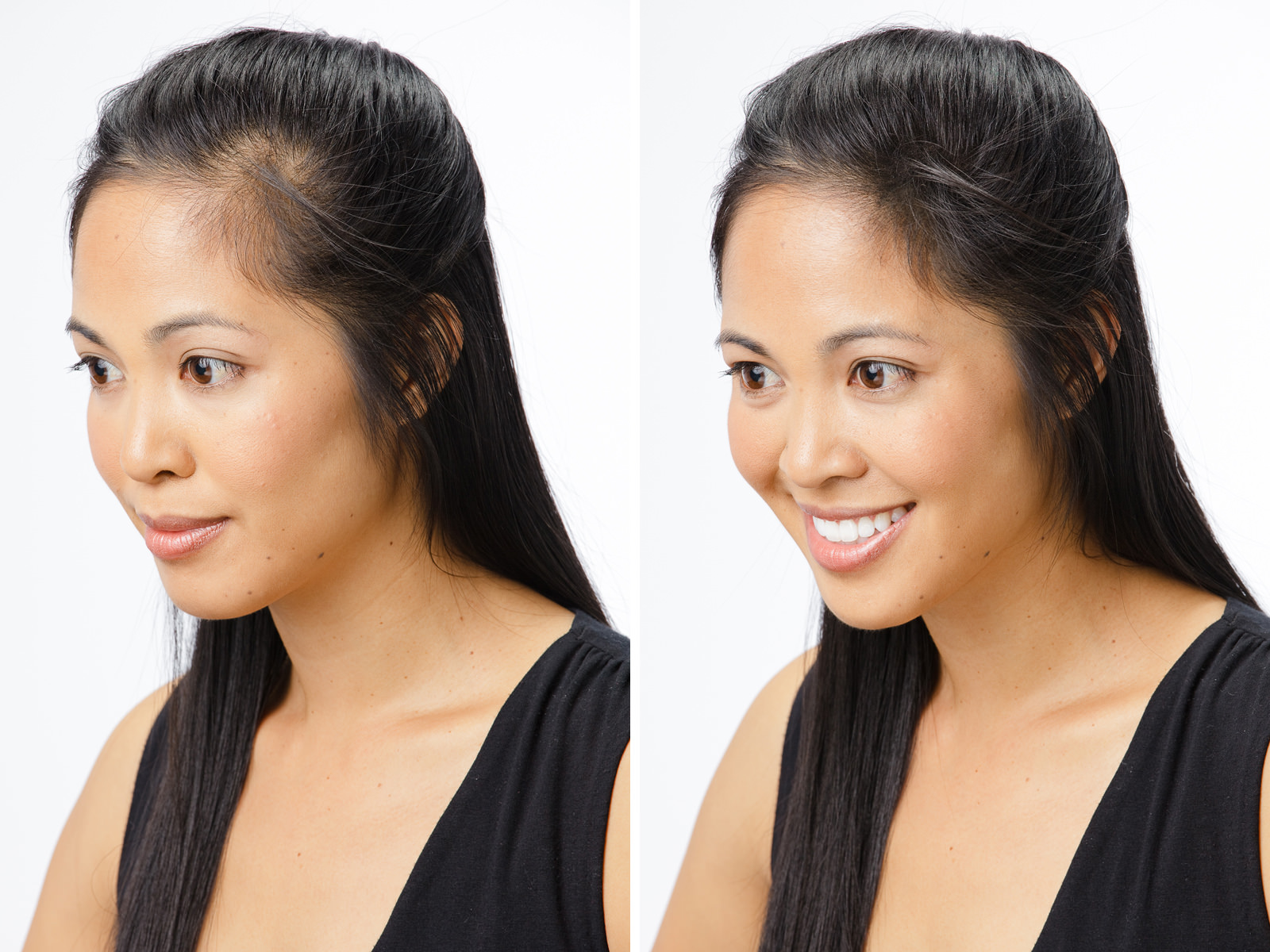 foto How to Treat Womens Hair Loss